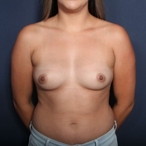 Before Photo - Breast Augmentation - Case #13470 - 25 Year Old Female - Frontal View