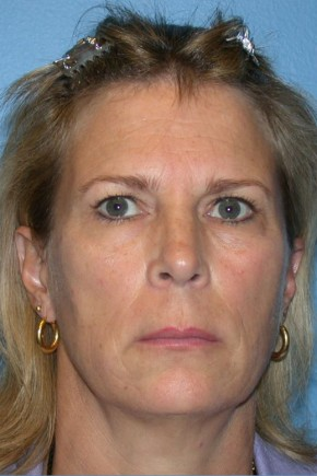Before Photo - Facelift - Case #13480 - Facelift with Necklift and Browlift - Frontal View
