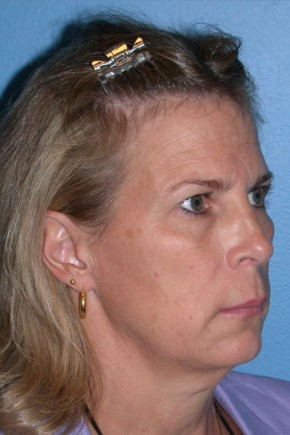 Before Photo - Facelift - Case #13480 - Facelift with Necklift and Browlift - Oblique View