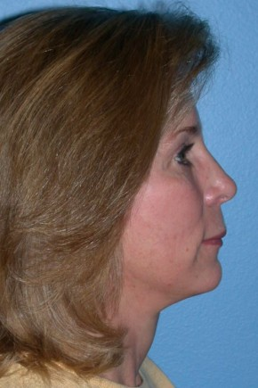 After Photo - Facelift - Case #13480 - Facelift with Necklift and Browlift - Lateral View