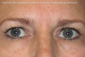 Before Photo - Facelift - Case #13480 - Facelift with Necklift and Browlift - Worm's Eye View