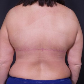 After Photo - Upper Body Lift - Case #13488 - Backlift - Posterior View