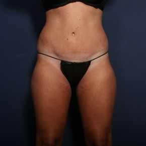 After Photo - Tummy Tuck - Case #13494 - 28 Year old female - Frontal View