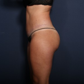 After Photo - Tummy Tuck - Case #13494 - 28 Year old female - Lateral View