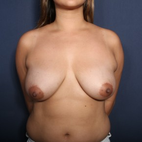 Before Photo - Breast Reduction - Case #13495 - 34 Year Old Female - Frontal View
