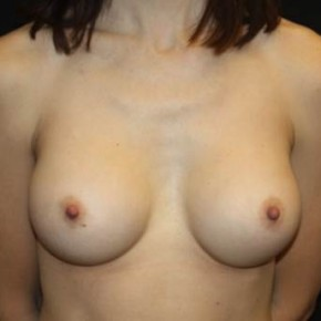 After Photo - Breast Augmentation - Case #13496 - Breast Augmentation - 37 year old female - Frontal View