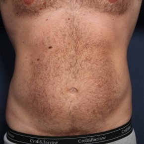 Before Photo - Liposuction - Case #13504 - 39 Year Old Male  - Frontal View