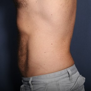 After Photo - Liposuction - Case #13504 - 39 Year Old Male  - Lateral View