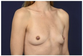 Before Photo - Breast Augmentation - Case #13509 - 25-34 year old woman treated with Breast Augmentation - Oblique View