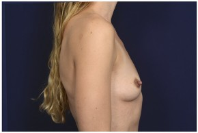 Before Photo - Breast Augmentation - Case #13509 - 25-34 year old woman treated with Breast Augmentation - Lateral View