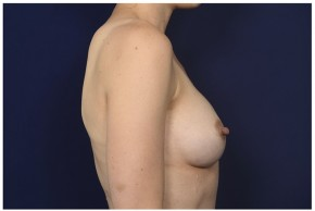 After Photo - Breast Augmentation - Case #13509 - 25-34 year old woman treated with Breast Augmentation - Lateral View