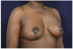 After Photo - Breast Reduction - Case #13510 - 35-44 year old woman treated with Breast Reduction - Oblique View