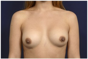 Before Photo - Breast Revision - Case #13511 - 25-34 year old woman treated with Breast Implant Revision - Frontal View