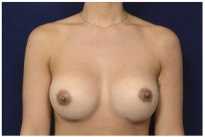 After Photo - Breast Revision - Case #13511 - 25-34 year old woman treated with Breast Implant Revision - Frontal View