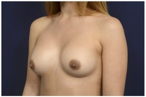 Before Photo - Breast Revision - Case #13511 - 25-34 year old woman treated with Breast Implant Revision - Oblique View