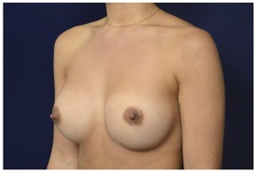 After Photo - Breast Revision - Case #13511 - 25-34 year old woman treated with Breast Implant Revision - Oblique View