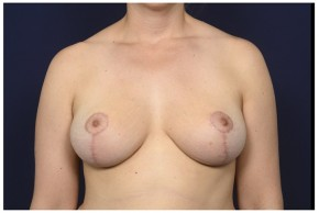 After Photo - Breast Reduction - Case #13512 - 35-44 year old woman treated with Breast Reduction - Frontal View