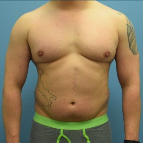 Before Photo - Liposuction - Case #13484 - Power-Assisted and Laser-Assisted Lipoplasty (Smartlipo) Abdomen, Hips and Flanks - Frontal View
