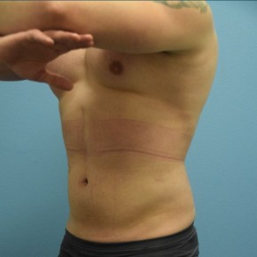After Photo - Liposuction - Case #13484 - Power-Assisted and Laser-Assisted Lipoplasty (Smartlipo) Abdomen, Hips and Flanks - Oblique View