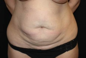 Before Photo - Tummy Tuck - Case #13517 - Abdominoplasty - 35 year old female - Frontal View
