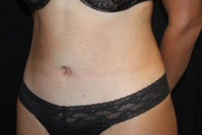 After Photo - Tummy Tuck - Case #13517 - Abdominoplasty - 35 year old female - Oblique View