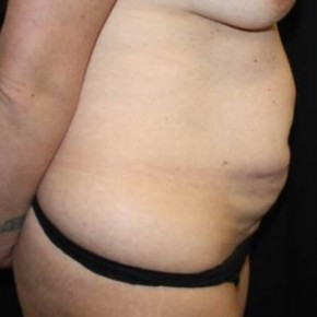 Before Photo - Tummy Tuck - Case #13517 - Abdominoplasty - 35 year old female - Lateral View