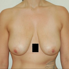 Before Photo - Breast Lift - Case #13520 - Frontal View