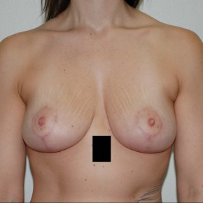 After Photo - Breast Lift - Case #13520 - Frontal View