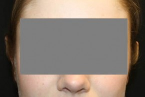After Photo - Ear Surgery - Case #13521 - Otoplasty - 17 year old female - Frontal View