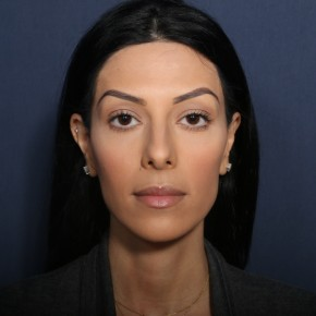 Before Photo - Nose Surgery - Case #13527 - 27 Years Old Female - Frontal View
