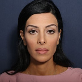 After Photo - Nose Surgery - Case #13527 - 27 Years Old Female - Frontal View