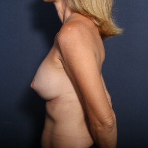 After Photo - Breast Revision - Case #13596 - 50 Year old female  - Lateral View