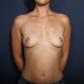 Before Photo - Breast Augmentation - Case #13597 - 27 Year Old Female - Frontal View