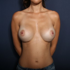 After Photo - Breast Augmentation - Case #13597 - 27 Year Old Female - Frontal View