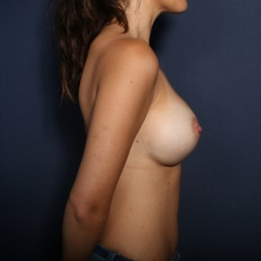 After Photo - Breast Augmentation - Case #13597 - 27 Year Old Female - Lateral View