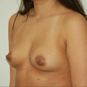 Before Photo - Breast Augmentation - Case #13598 - Bilateral Breast Augmentation - Oblique View