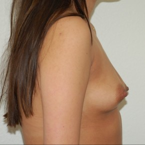 Before Photo - Breast Augmentation - Case #13598 - Bilateral Breast Augmentation - Lateral View