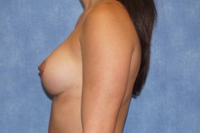 After Photo - Breast Augmentation - Case #13600 - Breast Augmentation Subpectoral Silicone Breast Implants Case 48 - Lateral View