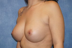 After Photo - Breast Augmentation - Case #13601 - Breast Augmentation Subglandular Silicone Breast Implants Case 47 - Oblique View