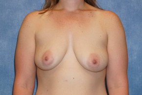 Before Photo - Breast Augmentation - Case #13603 - Breast Augmentation Subpectoral Silicone Breast Implants Case 45 - Frontal View