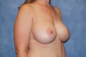 After Photo - Breast Augmentation - Case #13603 - Breast Augmentation Subpectoral Silicone Breast Implants Case 45 - Oblique View