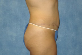 After Photo - Tummy Tuck - Case #13605 - Tummy Tuck Case 3 - Lateral View