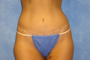 After Photo - Tummy Tuck - Case #13606 - Tummy Tuck Case 3 - Frontal View