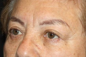 After Photo - Eyelid Surgery - Case #13648 - Blepharoplasty and Brow Lift - 78 year old female. - Oblique View