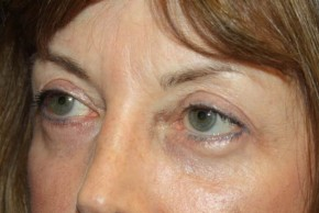 After Photo - Eyelid Surgery - Case #13649 - Blepharoplasty - 59 year old female. - Oblique View