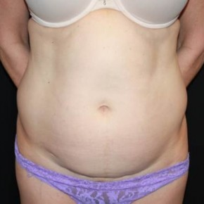 Before Photo - Tummy Tuck - Case #13650 - Abdominoplasty - 49 year old female. - Frontal View