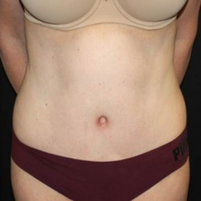 After Photo - Tummy Tuck - Case #13650 - Abdominoplasty - 49 year old female. - Frontal View