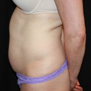 Before Photo - Tummy Tuck - Case #13650 - Abdominoplasty - 49 year old female. - Lateral View