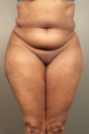 Before Photo - Tummy Tuck - Case #13678 - Abdominoplasty - Frontal View