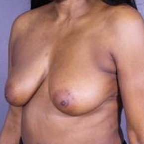Before Photo - Breast Lift - Case #13679 - Vertical Mastopexy - Oblique View